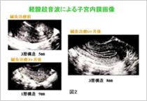 経膣超音波による子宮内膜画像